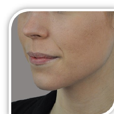 treat and cure acne and rosacea