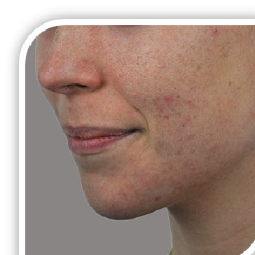 acne and rosacea treatment