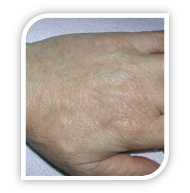 pigmented lesions treatment and reduction