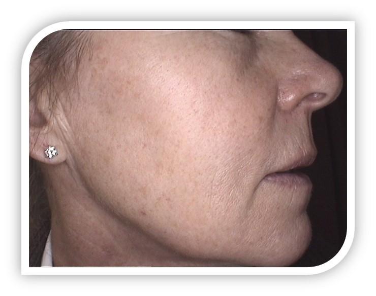 face wrinkles reduction skin rejuvenation